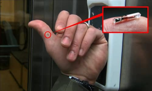 Growing Acceptance Of Microchip Implants - Would You Get